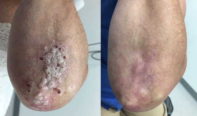 can psoriasis be cured completely)