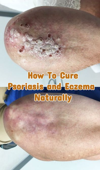 eczema and psoriasis nature cure
